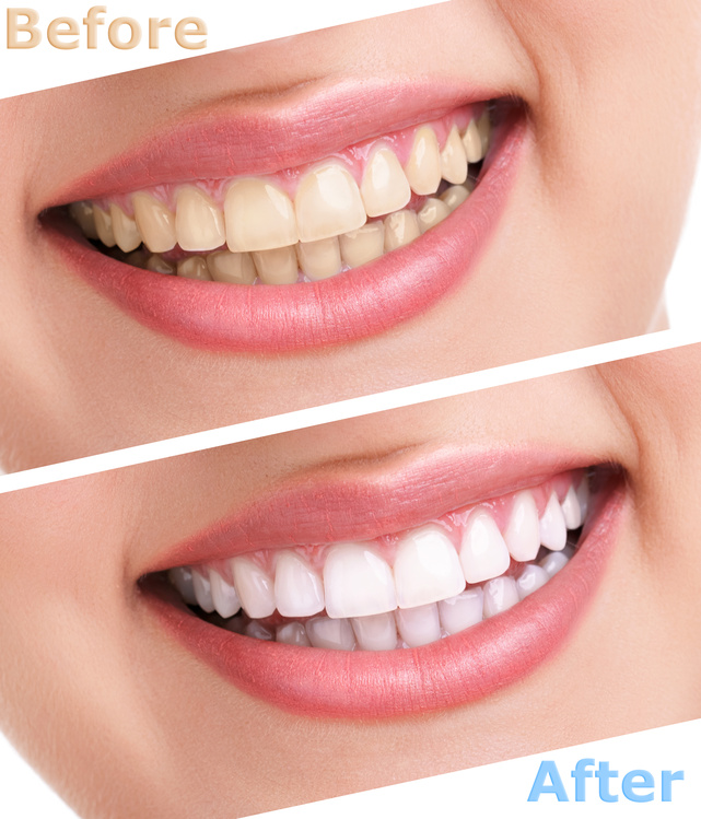 How Does Laser Teeth Whitening Work