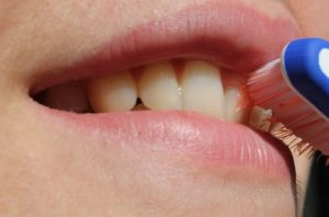 Periodontal Disease and Your Health